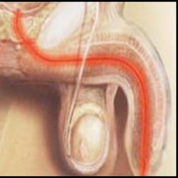 seks-s-prezervativom-pri-vospalenie-predstatelnoy-zhelezi