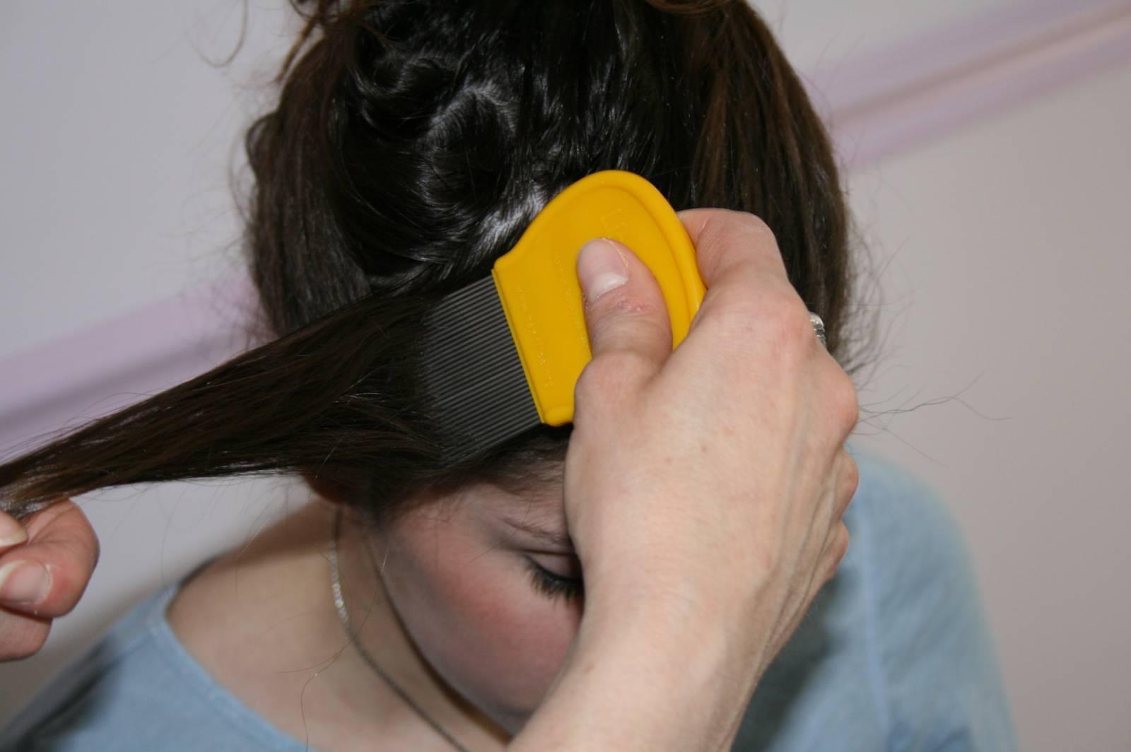 Как смыть гнид с волос